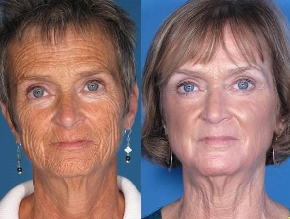 How to Choose Laser Skin Resurfacing