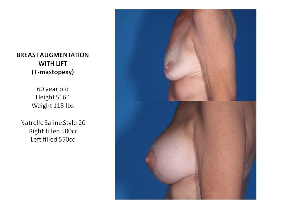 Breast Lift Raleigh, North Carolina - Michael Law MD
