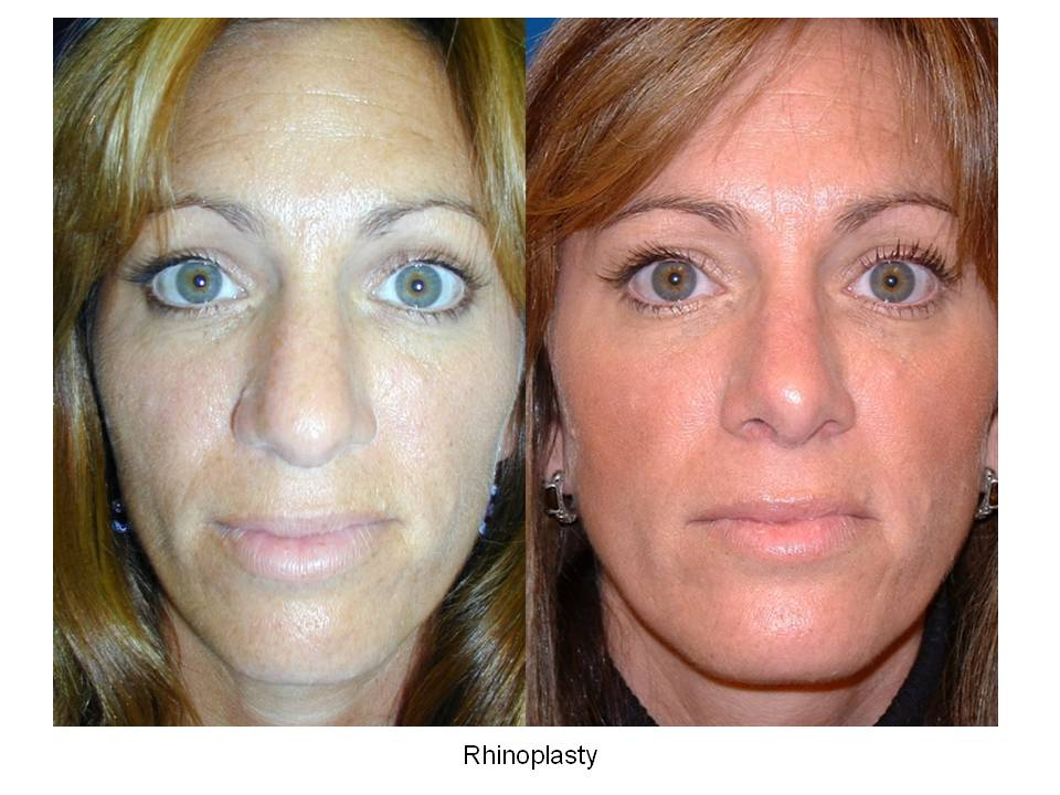 Rhinoplasty Before & After Photos - Summit Plastic Surgery ...
