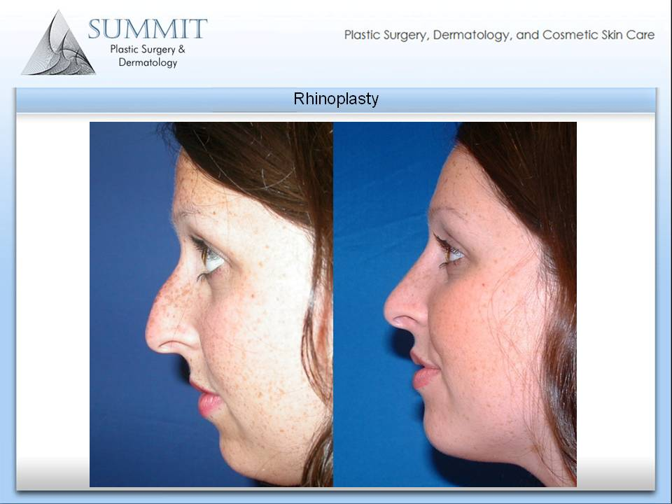 Choosing the Right Plastic Surgeon for Rhinoplasty