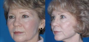 mini facelift before & after photos