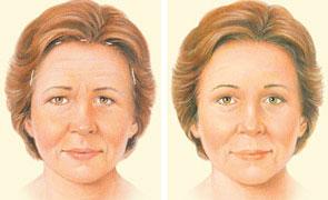 Forehead Lift Browlift Summit Plastic Surgery