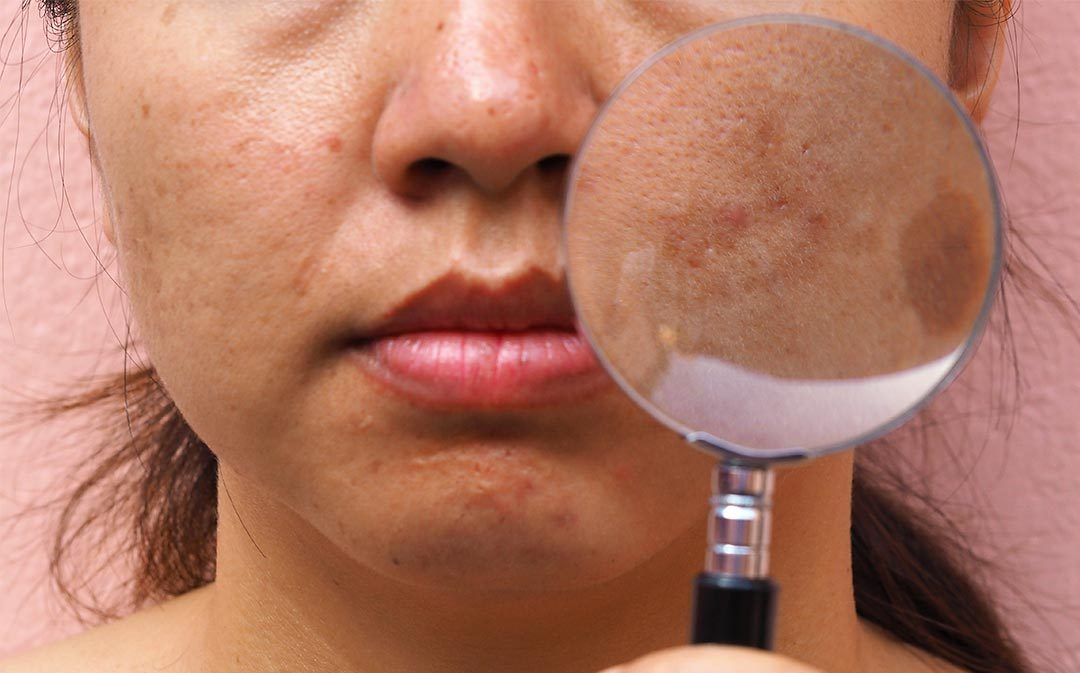 See Brown or Gray Patches on Your Face? Could Be Melasma.
