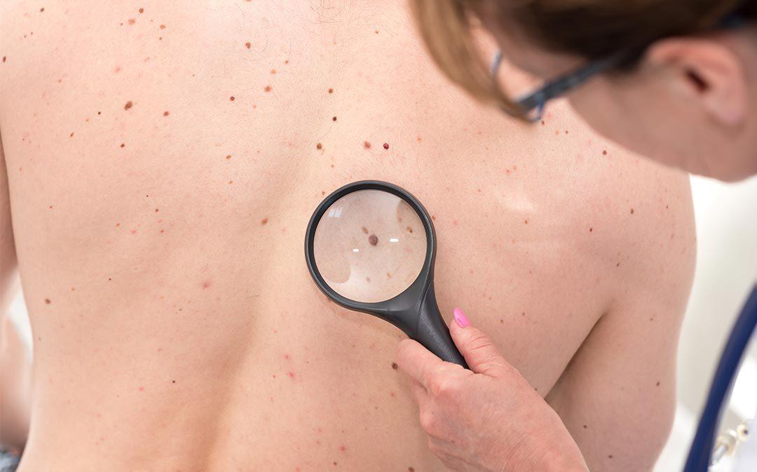 Skin Care University: Moles 101