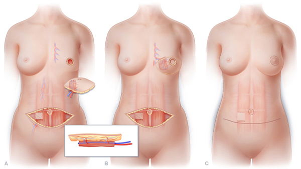 TRAM flap reconstruction uses skin, fat, and muscle from your abdomen to form a breast.