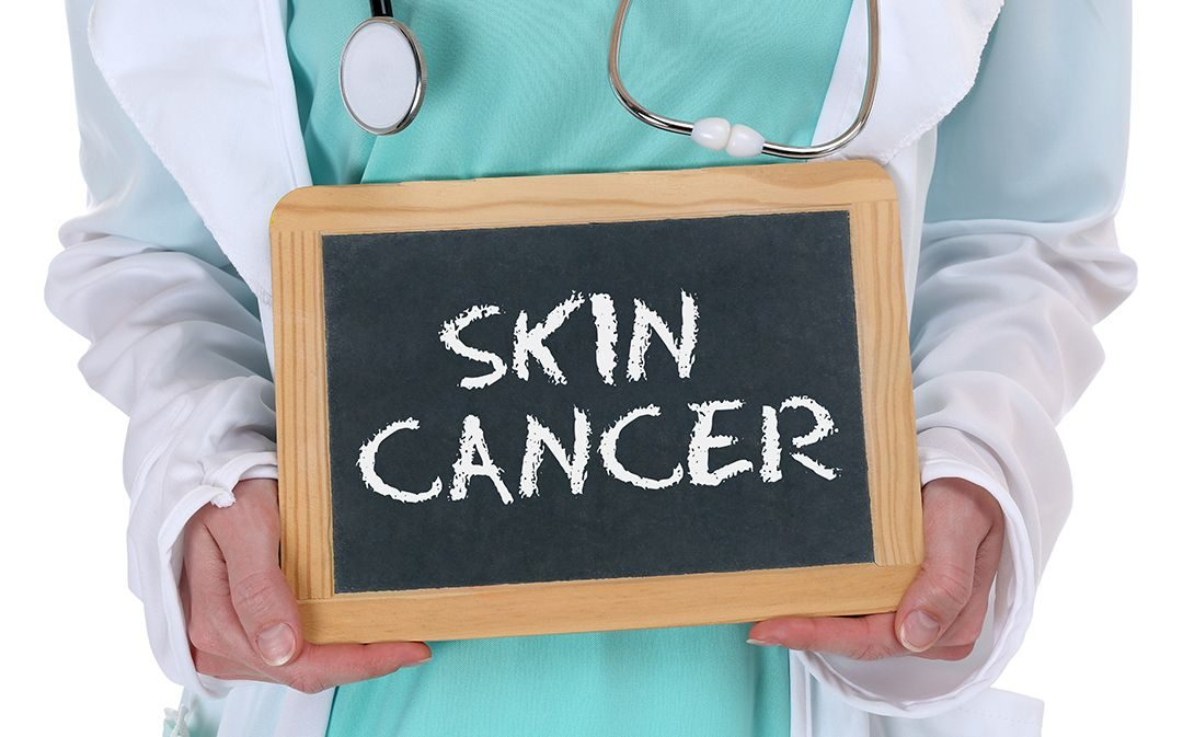 skin cancer risk factors
