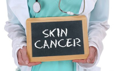 Know These Key Risk Factors for Skin Cancer