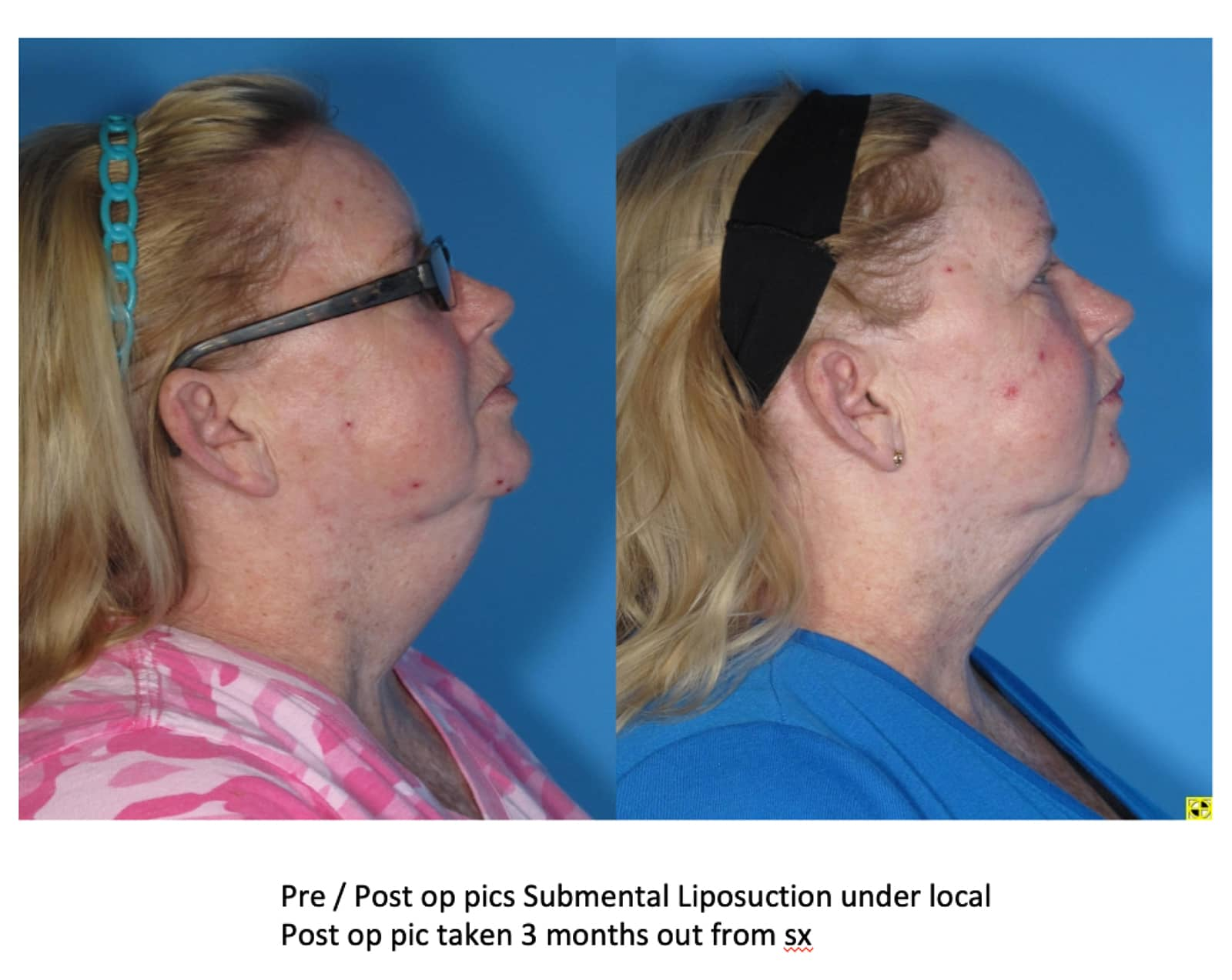 submental liposuction