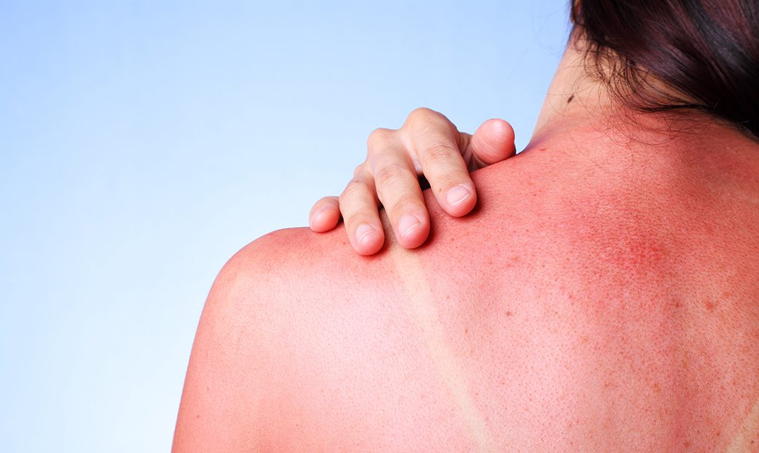 Tips for Treating a Bad Sunburn