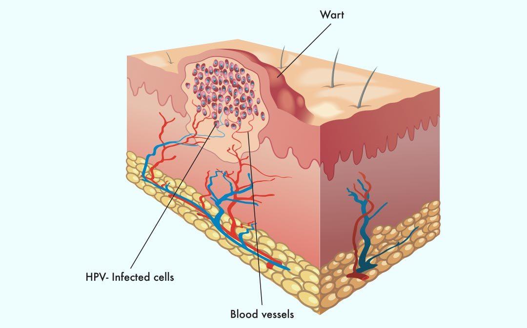 skin care university warts 101 summit plastic surgery \u0026 dermatology Plantar Wart Tissue Heals skin care university warts 101