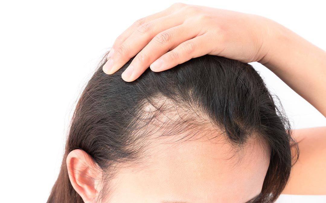 What To Do About Your Thinning Hair