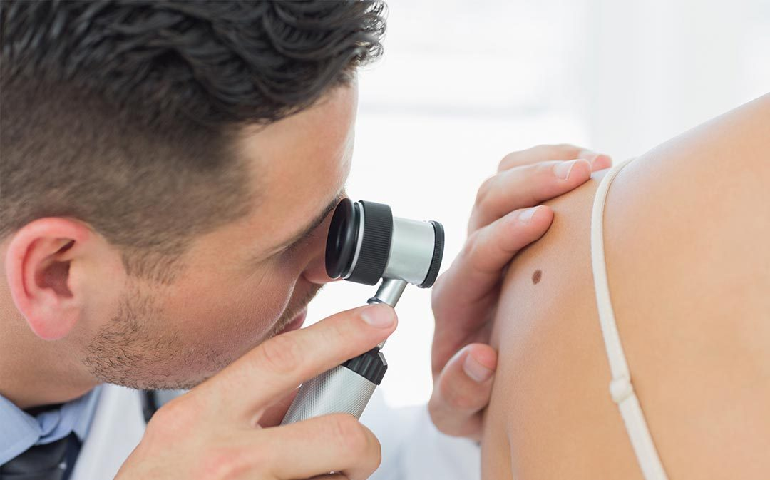 When Should I See the Dermatologist Right Away?